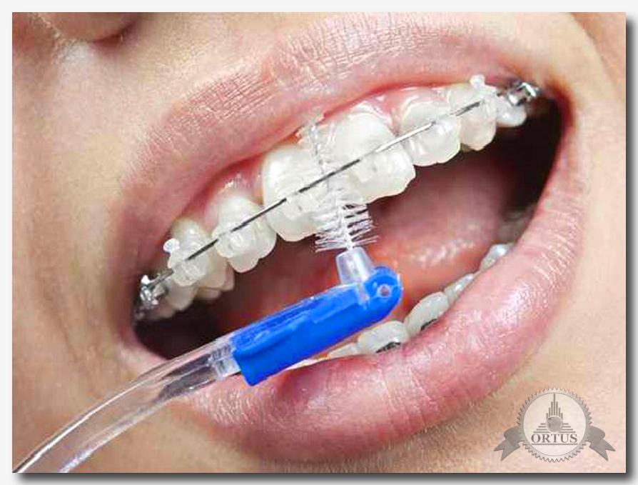 Что такое профессиональная чистка зубов, правильная  гигиена и уход за полостью рта, об этом рассказывает стоматолог - консультант информационного портала Ортус Глобал: https://ortus-global.com/blog/professionalnaya-chistka-zubov-gigiena-i-ukhod-za-polostyu-rta